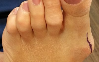 Surgical Correction of Bunions