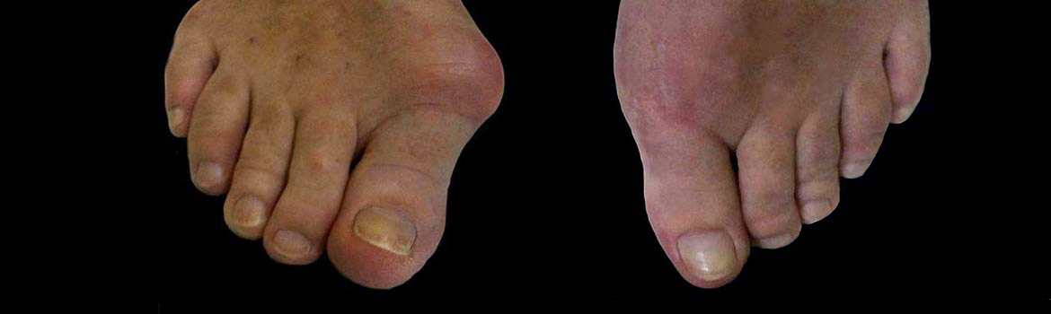 bunion-surgery-featured