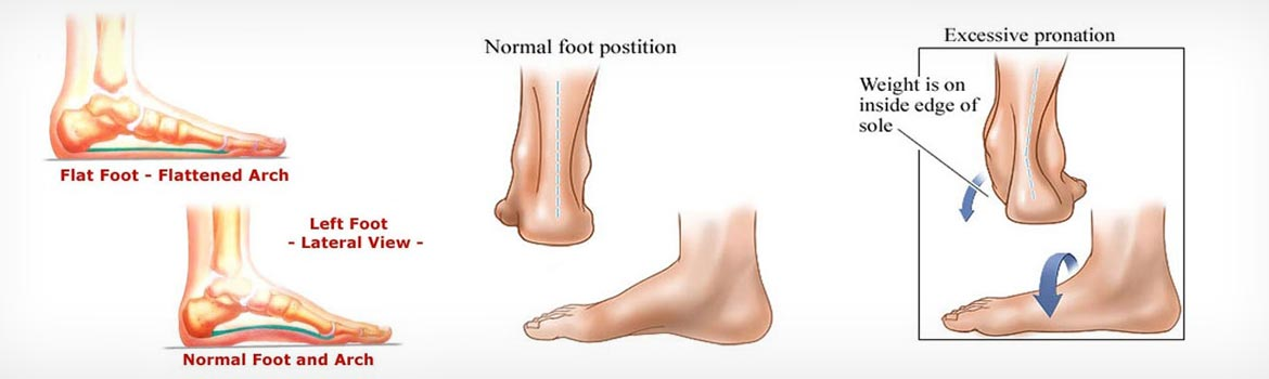 flat-foot-featured