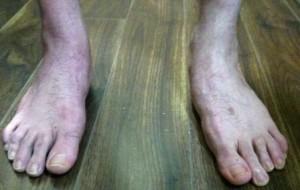 flatfoot-1-300×190