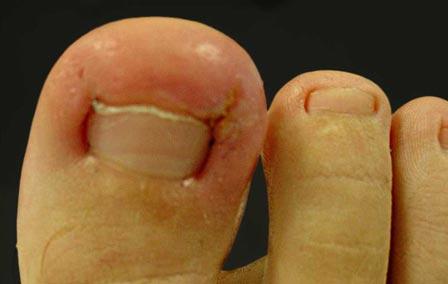 ingrown-toenail-1